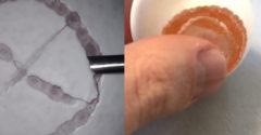Chirurg chcel ukázať svoju profesionálnu presnosť (Zoperoval surové vajíčko)