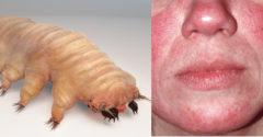 Parazit, ktorého si mnohí z nás nosia v sebe, a ani o tom netušia. Existuje však niekoľko príznakov