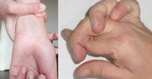 Máte takto ohybné ruky? Pravdepodobne trpíte Marfanovym syndrómom