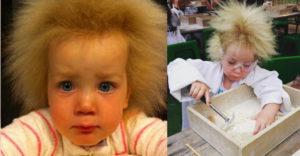 Narodila sa s mimoriadne vzácnym ochorením vlasov. Dnes má 11 rokov a sa svoju odlišnosť si už zvykla