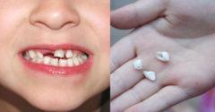 Nevyhadzujte mliečne zuby svojich detí. Jedného dňa im môžu zachrániť život